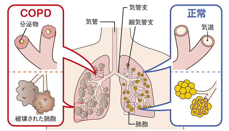 COPD_02